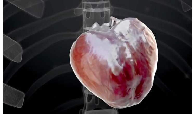 World's 1st completely robotic heart slated for transplant by 2028
